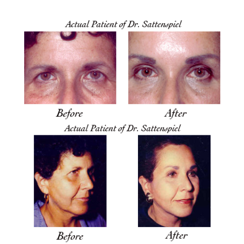 eyebrow forehead lift photos
