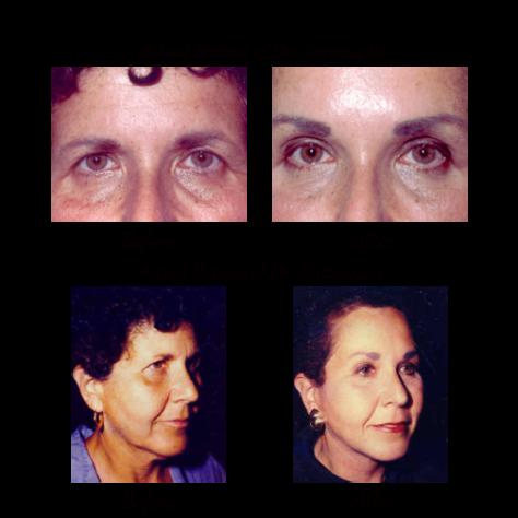eyebrow forehead lift photos