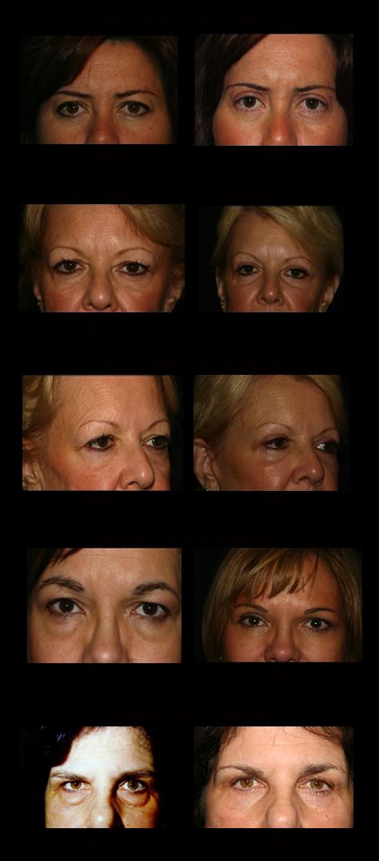 eyelid surgery photos 2