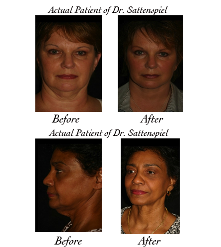 facelift surgery photos 2