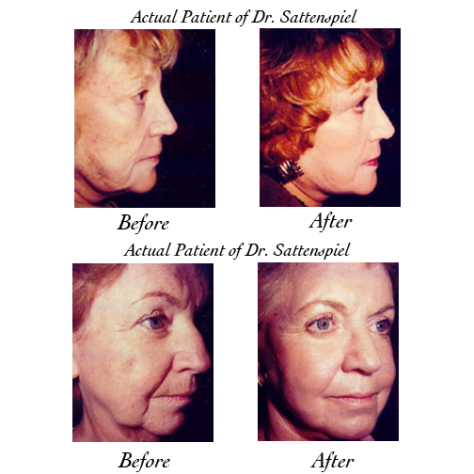 laser skin photos
