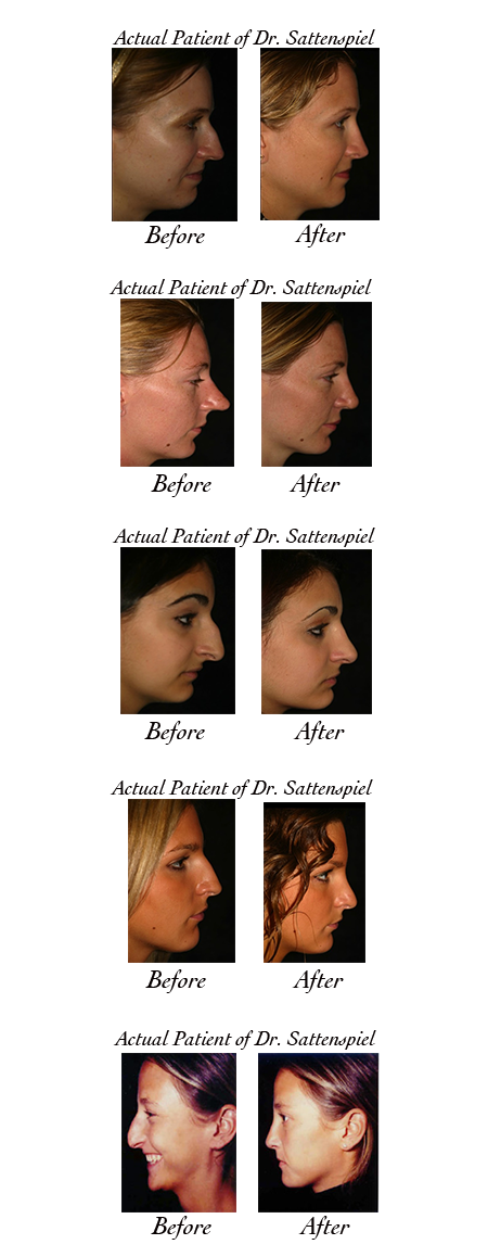 nose surgery photos 2